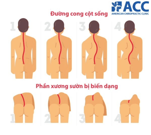 ở người bị vẹo cột sống, phần xương sống thường bị cong sang một bên