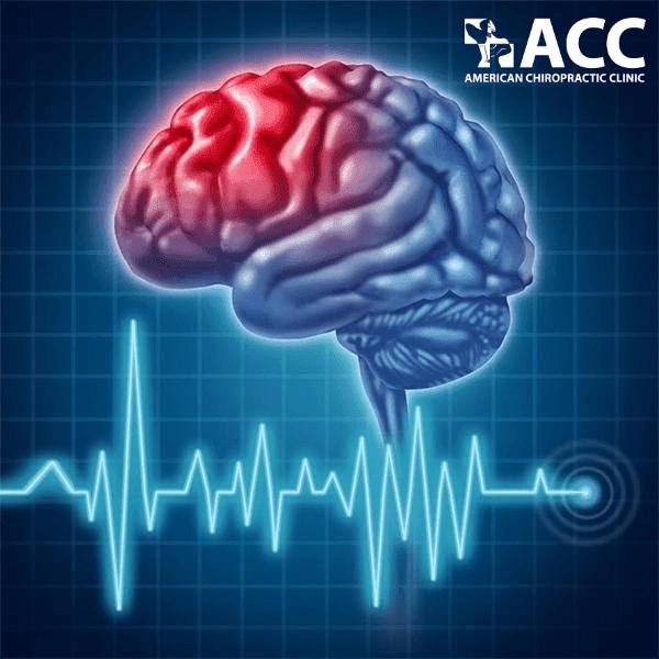 thoát vị đĩa đệm có thể gây thiếu máu não