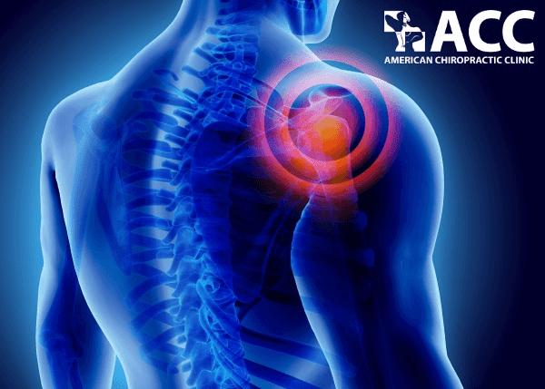 trật khớp vai có thể gây tổn thương thần kinh