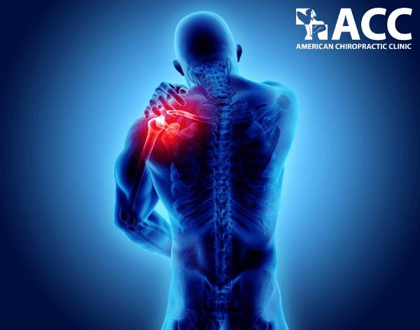 trật khớp vai gây đau dai dẳng và hạn chế vận động