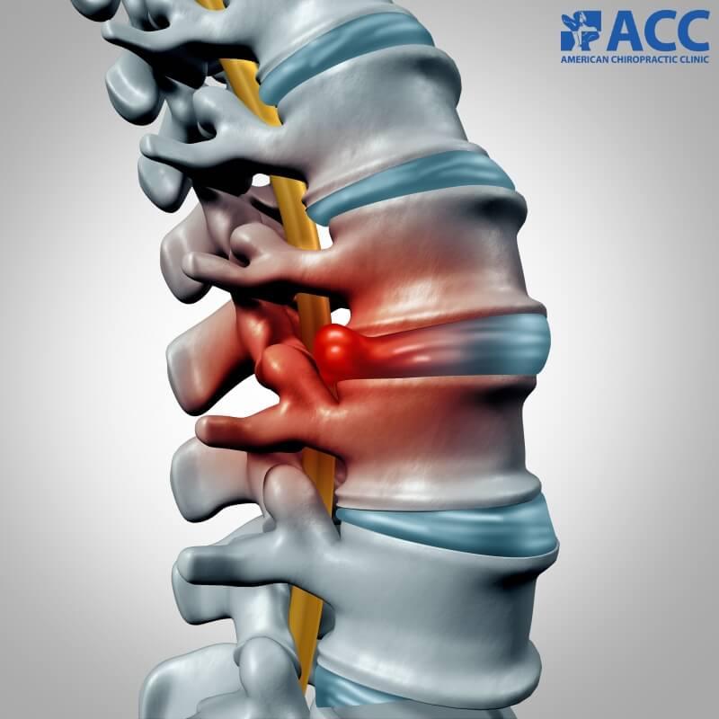 đau thắt lưng do thoát vị đĩa đệm
