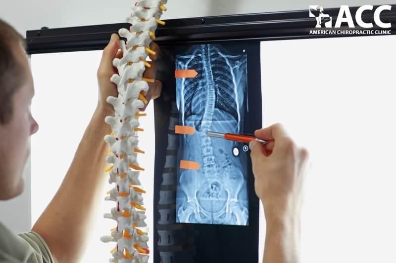xét nghiệm chẩn đoán cong vẹo cột sống