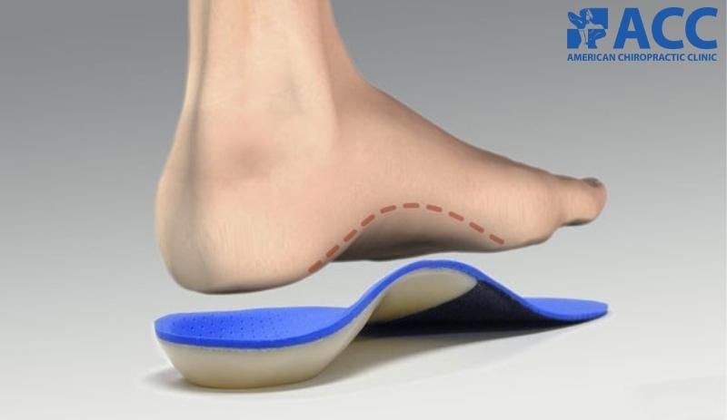 đế chỉnh hình bàn chân