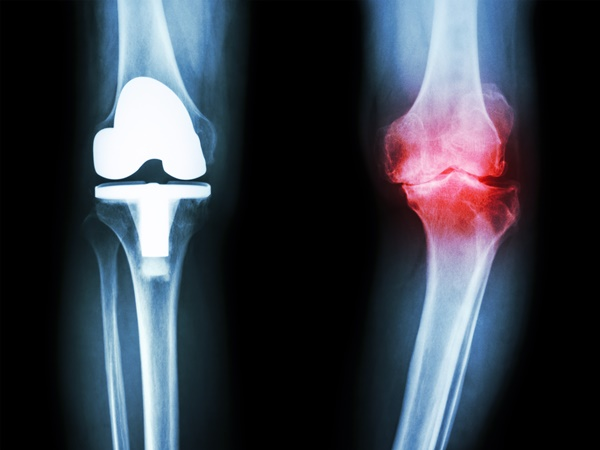 chẩn đoán thoái hóa xương khớp
