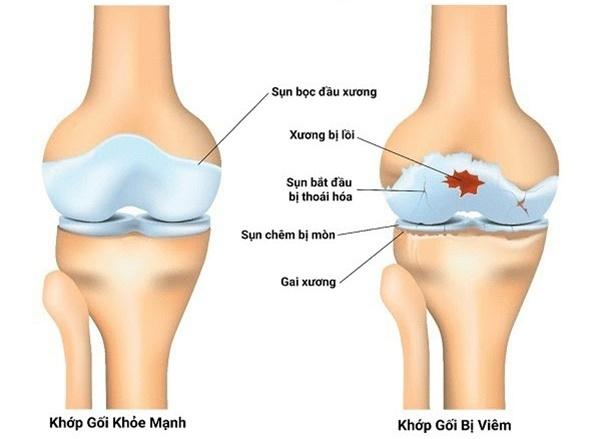 Thoái hóa xương khớp là gì