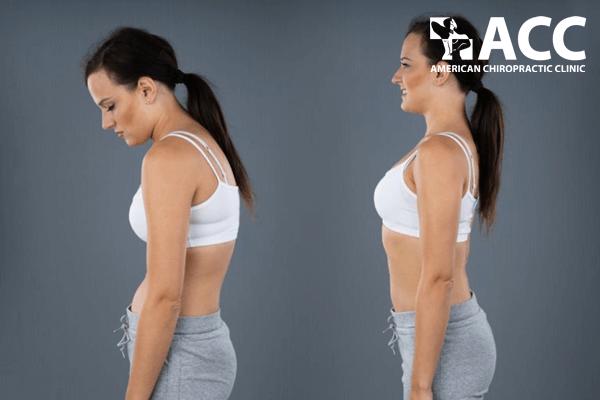 bài tập chữa gù lưng