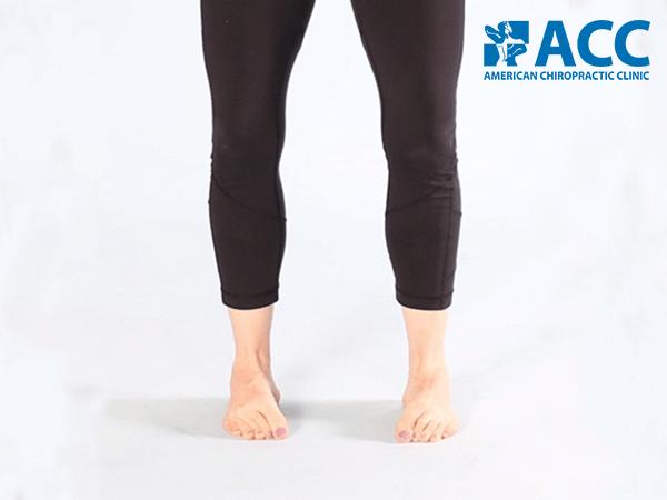 bài tập chữa bàn chân bẹt nâng vòm bàn chân