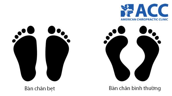 sự khác nhau giữa bàn chân bẹt và bàn chân bình thường