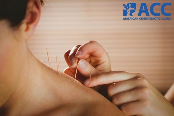 châm cứu chữa đau vai gáy là gì