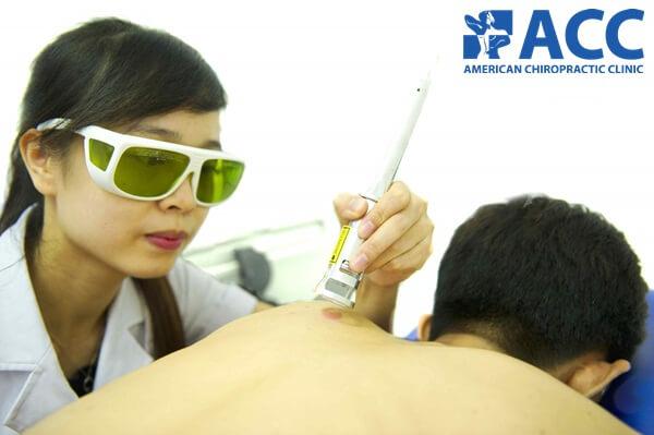 trị liệu laser thế hệ IV