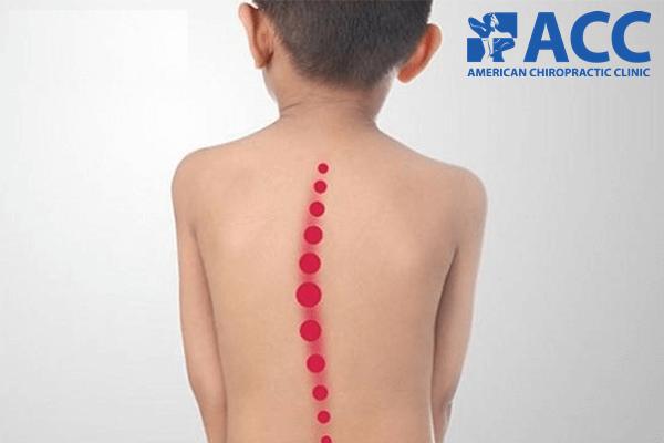 các phương pháp điều trị cong vẹo cột sống bẩm sinh