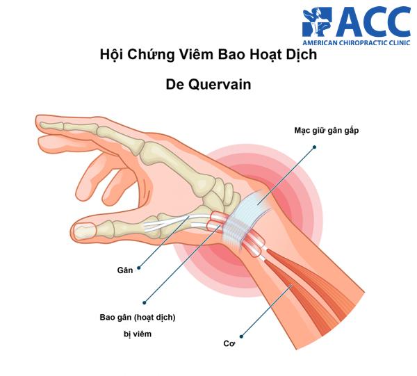 cứng khớp cổ tay do viêm bao hoạt dịch De Quervain