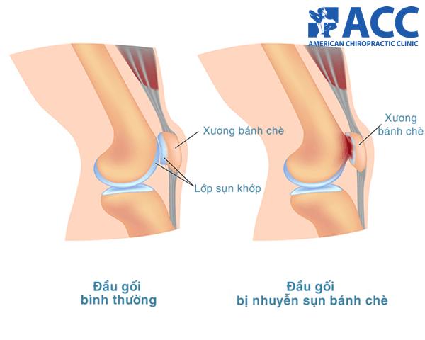 nguyên nhân gây đau đầu gối khi tập squat