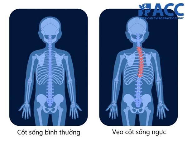 đau lưng giữa do cong vẹo cột sống