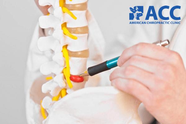 đau lưng dưới do thoát vị đĩa đệm thắt lưng