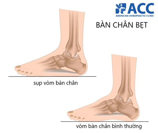 bàn chân bẹt