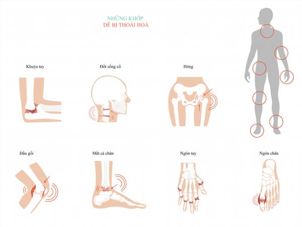 Xác định đúng nguồn gốc cơn đau khớp