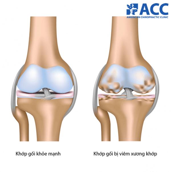 Phân biệt khớp gối khỏe mạnh và khớp gối bị viêm xương khớp