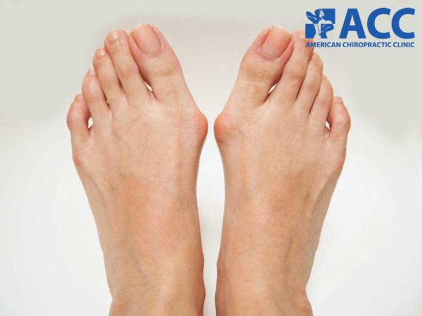 tác hại của mang giày cao gót