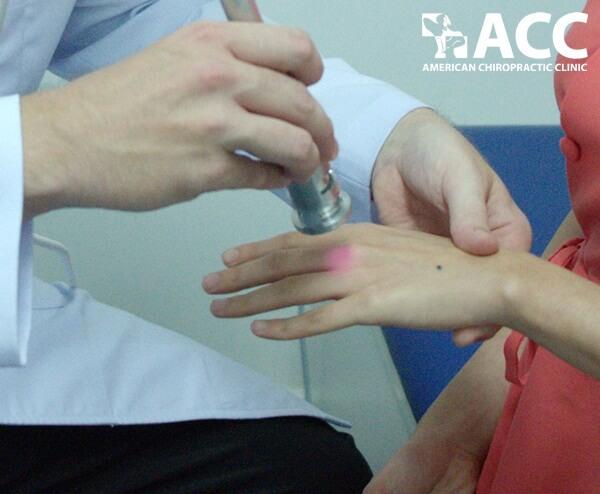 điều trị trật khớp ngón tay tại ACC