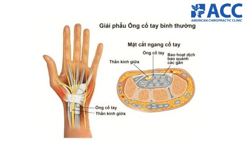 đau cổ tay là bệnh gì