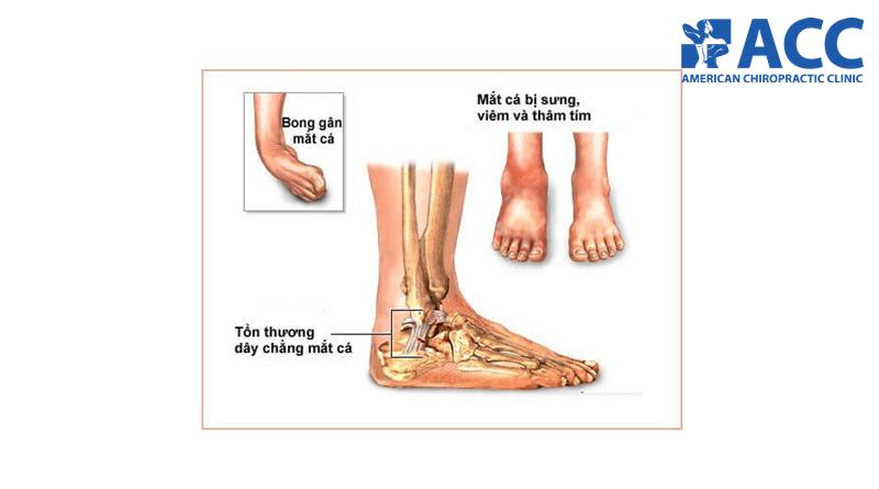 đau mắt cá chân khi ngủ dậy