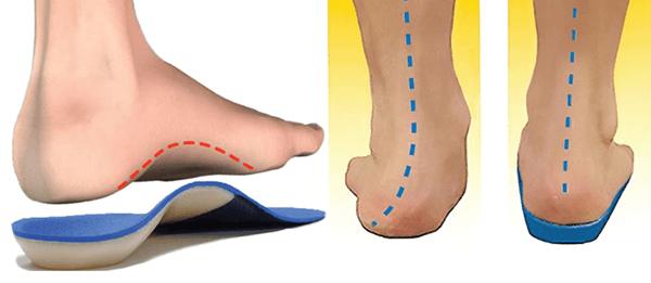 viêm khớp cổ chân do tật bàn chân bẹt