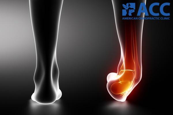bị bong gân cổ chân là tình trạng gì