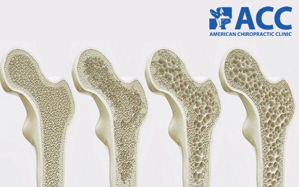 Thiếu hụt vitamin D3 có thể gây loãng xương hoặc xốp xương
