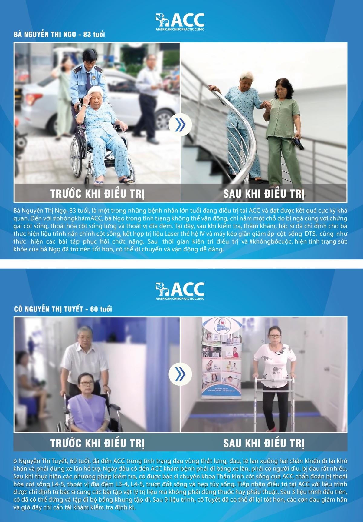 Bệnh nhân thoát vị đĩa đệm trước và sau khi điều trị tại ACC