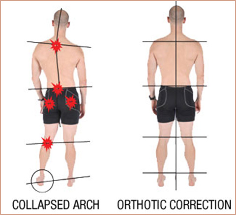 How-Orthotics-Work-2
