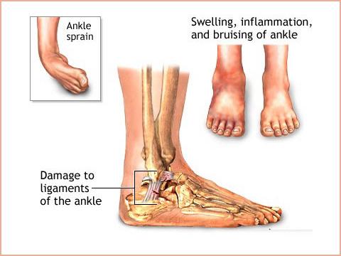 acc-ankle-sprain