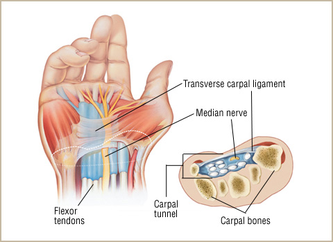 acc-carpal-tunnel-syndrome