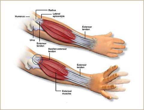 acc-tennis-elbow-2