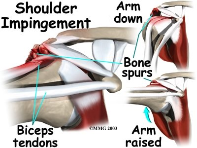 Copy of shoulder-impingement-syndrome-photo1