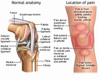 Acc english relief of chronic knee pain flat or crooked feet are a big cause of knee pain foot orthotics are often a big help ccuart Choice Image