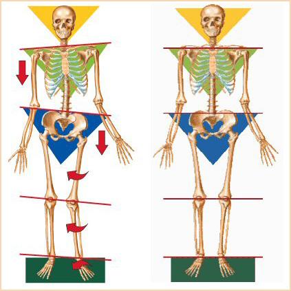 blog-Imbalanced-Skeleton