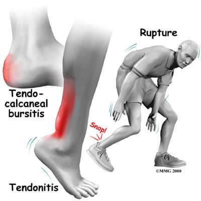 foot_achilles_tendon_symptoms01